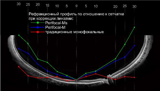 Линза имеет асимметричную прогрессию по обе стороны от оптического центра по горизонтали.