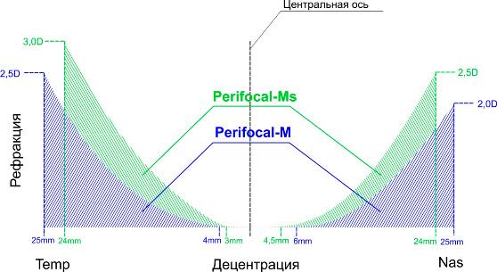 Perifocal-M., что способствует повышению эффективности терапевтического воздействия на прогрессию миопи